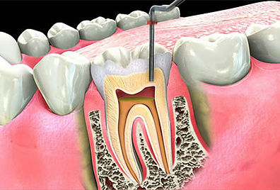 Root Canals Example