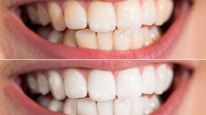 What Are My Options For Whitening My Teeth