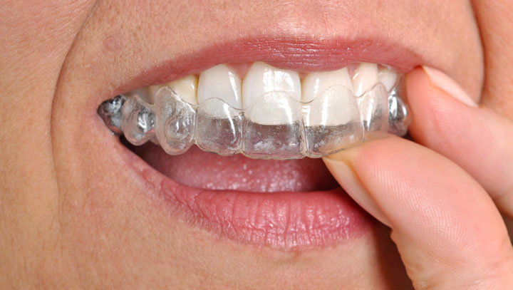 Invisalign for Overbite or Underbite