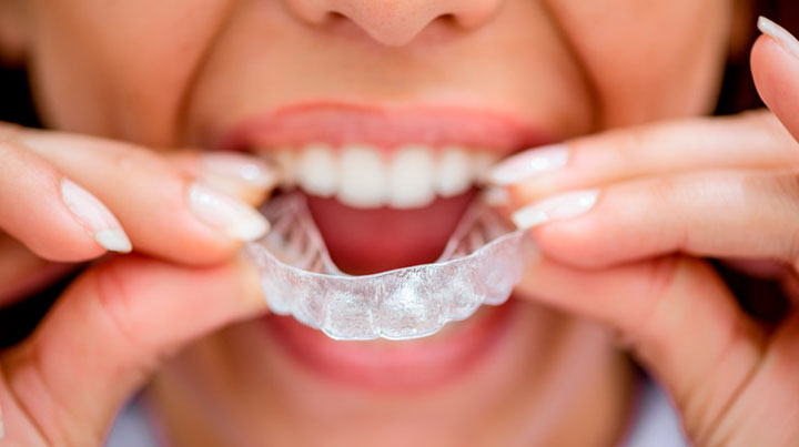 Woman Putting on Invisalign FAQ