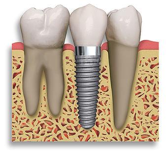 Dental Implants Screw