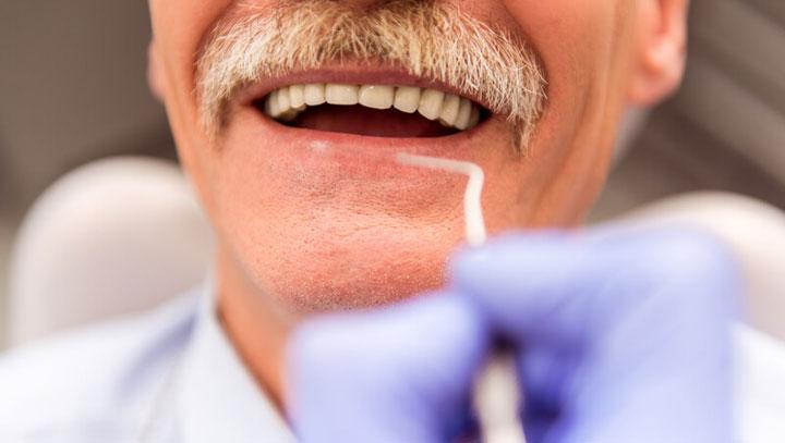 Single Tooth Dental Implant