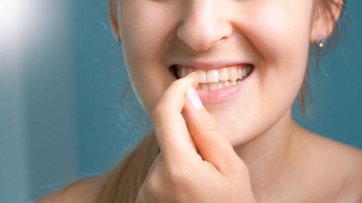 Gum Health Woman
